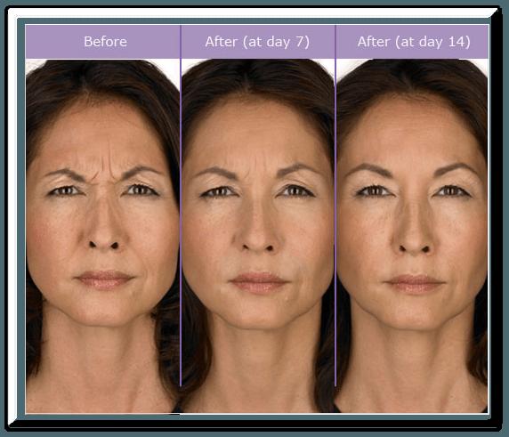 Angela-Botox