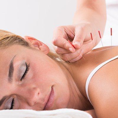 acupunture-women