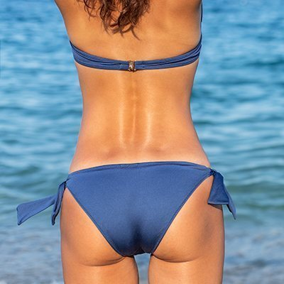 body-cellulite-women